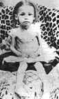 Afrikaner concentration camp child